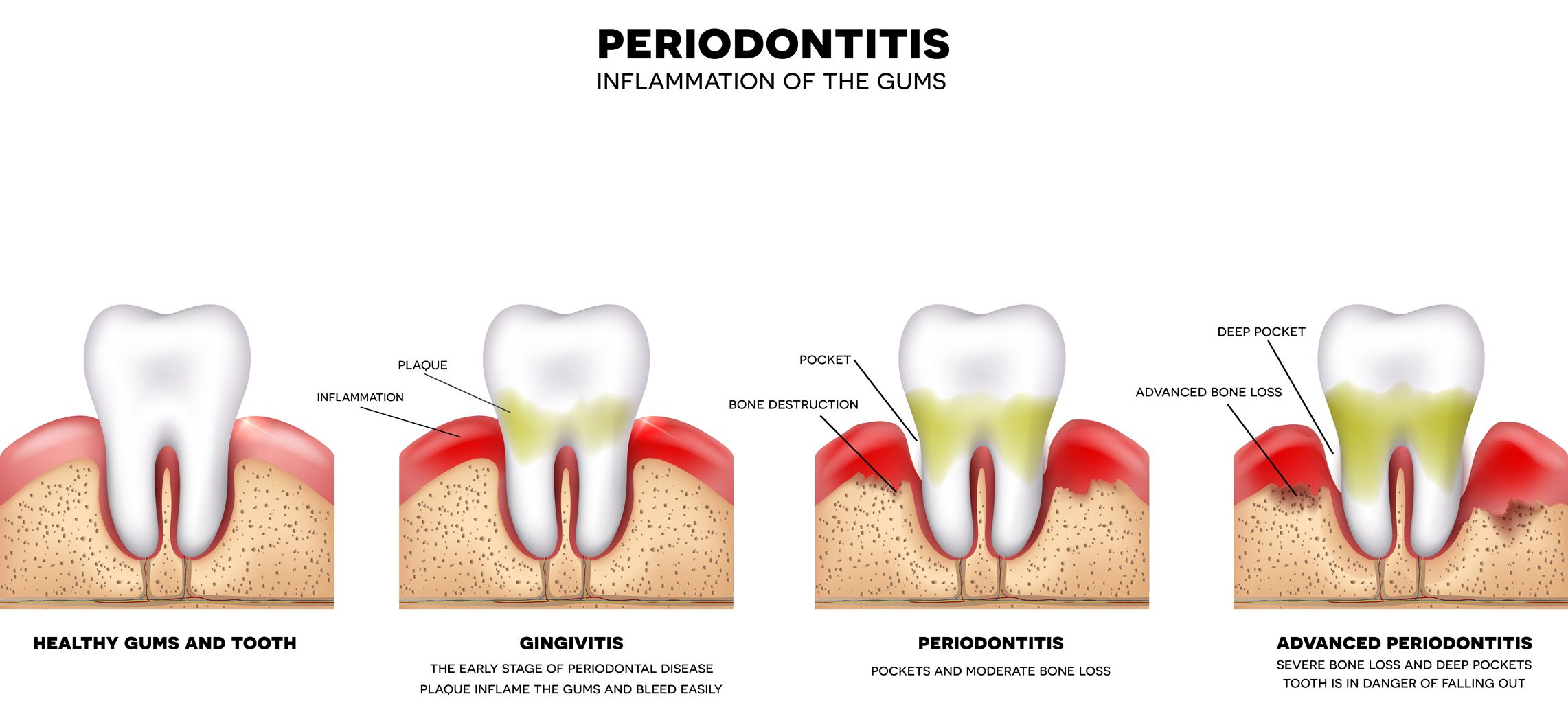 Gum Disease Therapy - Illustration