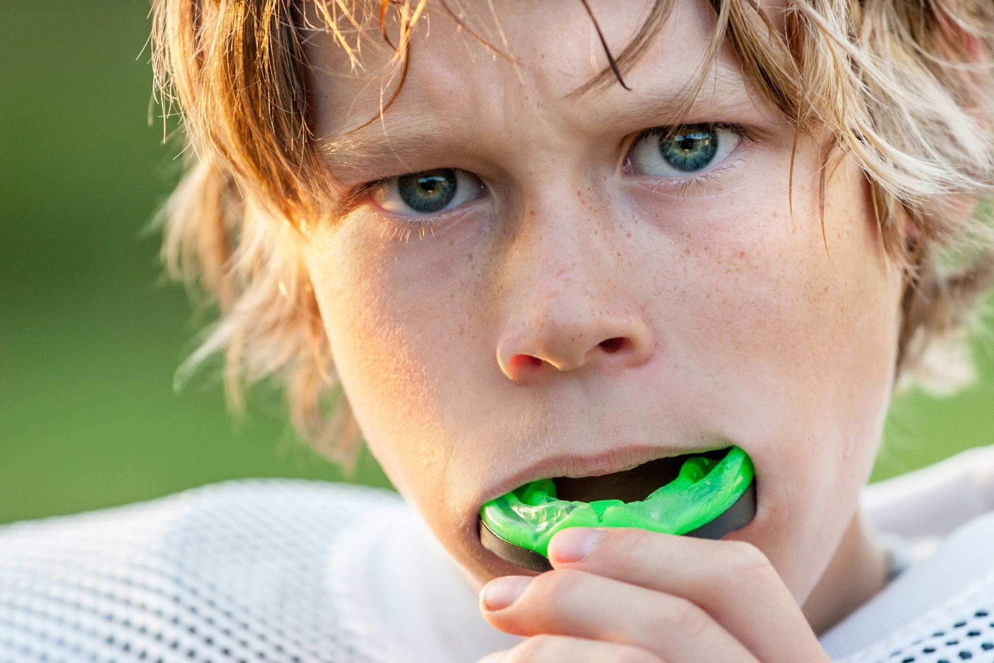 Mouth Guards - Boy with sports guard in mouth