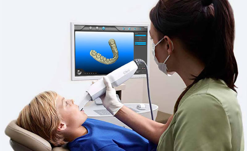 iTero Digital Impression Scanner