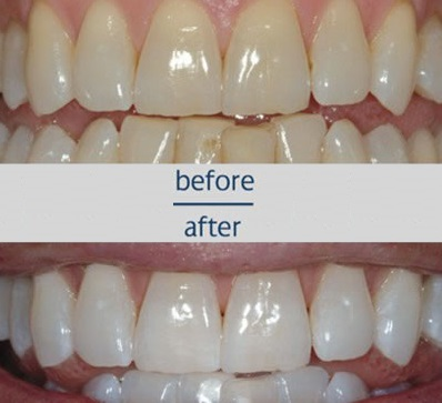 Teeth Whitening zoompic-before-and-after-dr-snider-margolian