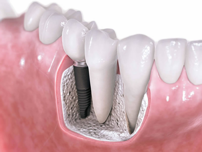 implants3
